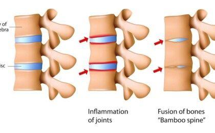 Bệnh viêm cột sống dính khớp có chữa được hay không?