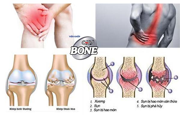 Đau nhức xương khớp uống thuốc gì?