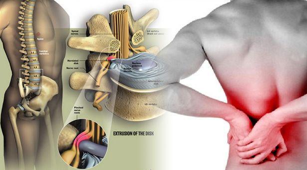 Bệnh loãng xương cũng có thể do ảnh hưởng của quá trình điều trị một số bệnh khác