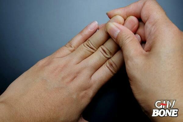 Cứng khớp là một triệu chứng điển hình của viêm khớp