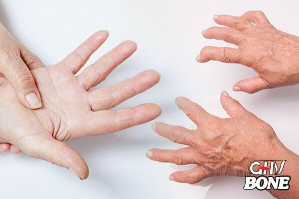 Sưng, nóng, đỏ, đau là triệu chứng viêm khớp dạng thấp