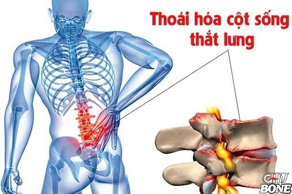 Thoái hóa cột sống thắt lưng là quá trình tổn thương ở phần đĩa đệm