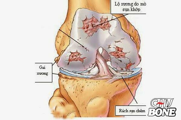 Mòn sụn khớp có thể gây viêm khớp mạn tính