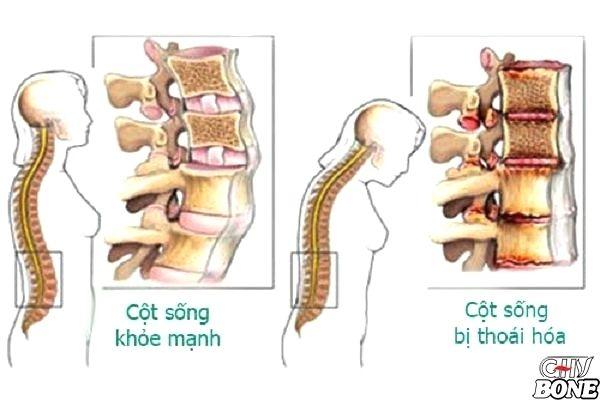 Phương pháp điều trị thoái hóa cột sống thắt lưng