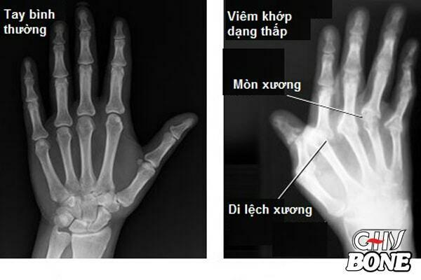 Chụp X-quang giúp chẩn đoán viêm khớp dạng thấp