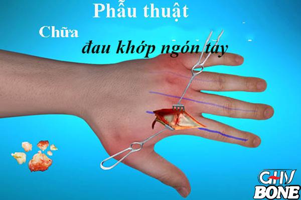 Phương pháp điều trị bệnh đau khớp ngón tay