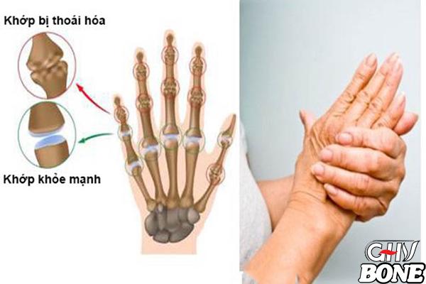 Thoái hóa khớp chính là 1 trong những nguyên nhân gây ra tình trạng đau khớp ngón tay