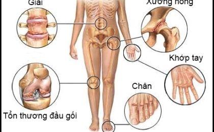 Dấu hiệu và nguyên nhân gây bệnh viêm khớp dạng thấp