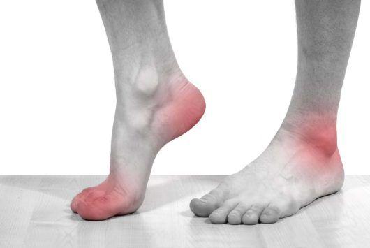 Đau khớp chân, đau khớp bàn chân, đau khớp ngón chân