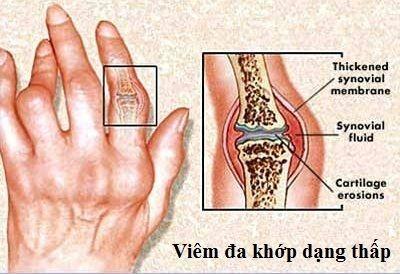 Hiểu rõ về bệnh viêm đa khớp dạng thấp