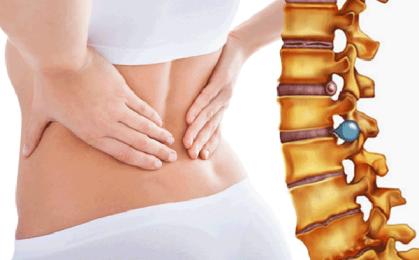 Triệu chứng thoát vị đĩa đệm đốt sống thắt lưng