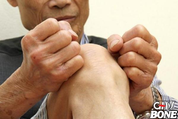 Đau nhức chân - Coi chừng bệnh nguy hiểm