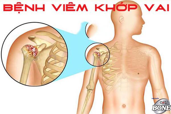 Các phương pháp điều trị đau khớp vai