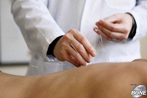 Châm cứu là phương pháp phổ biến trong điều trị bệnh xương khớp