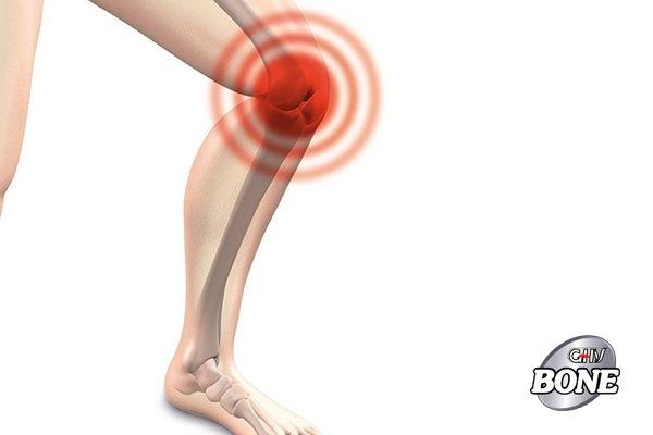 Đầu gối của bạn có thể bị đau khi leo cầu thang, đứng lên sau khi ngồi hoặc quỳ hoặc khi đi bộ
