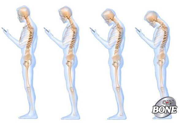 Nhìn điện thoại quá lâu và sai tư thế bị đau cũng có thể là triệu chứng của thoái hóa đĩa đệm