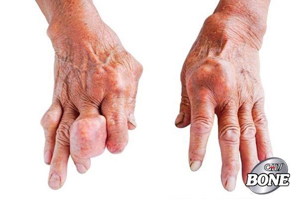 Hình ảnh bàn tay của một bệnh nhân Gút
