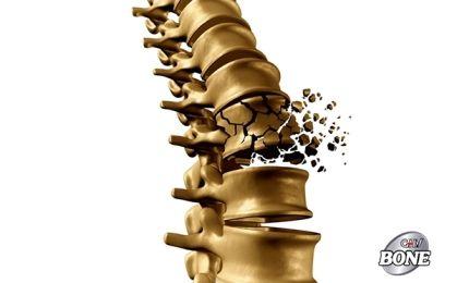Các yếu tố nguy cơ gây loãng xương có thể phòng ngừa
