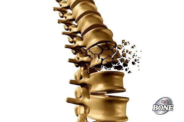 Loãng xương là khi xương trở nên mỏng manh và dễ bị gãy
