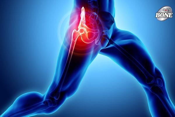 Viêm xương khớp có thể gây đau vùng hông khi hoạt động