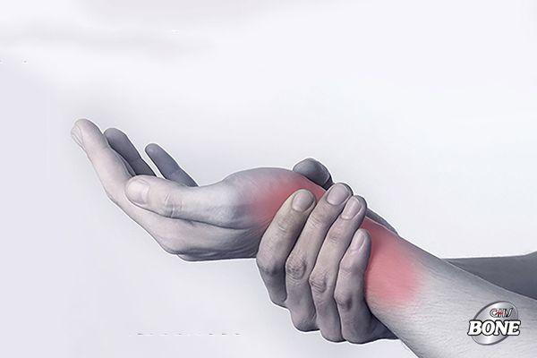 Cổ tay của bạn có dấu hiệu đau, cứng và sưng là dấu hiệu viêm xương khớp cổ tay