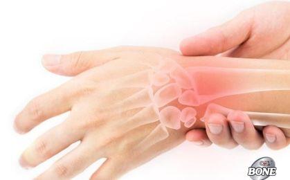 Đừng chủ quan khi bị đau cổ tay