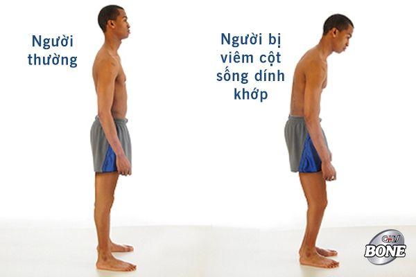 Viêm cột sống dính khớp có thể dẫn đến tư thế cúi người