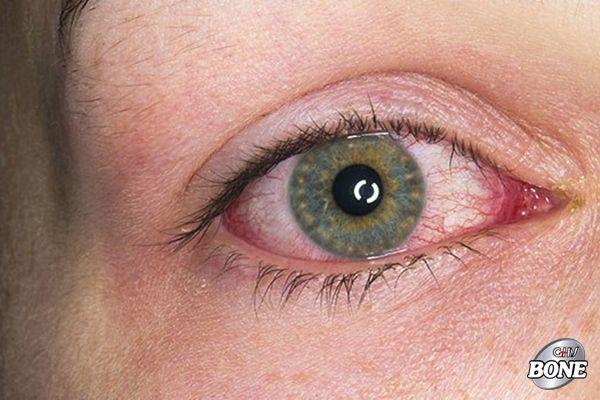 Hình ảnh mắt bị viêm màng bồ đào