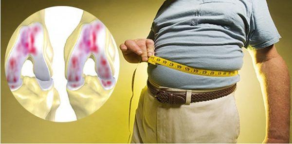 Béo phì ảnh hưởng lớn đến khớp gối do áp lực đến xương