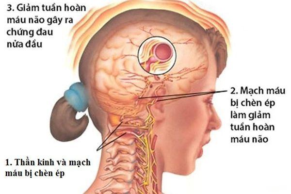 Bệnh thoái hóa khớp gây nhưng cơn đau đầu