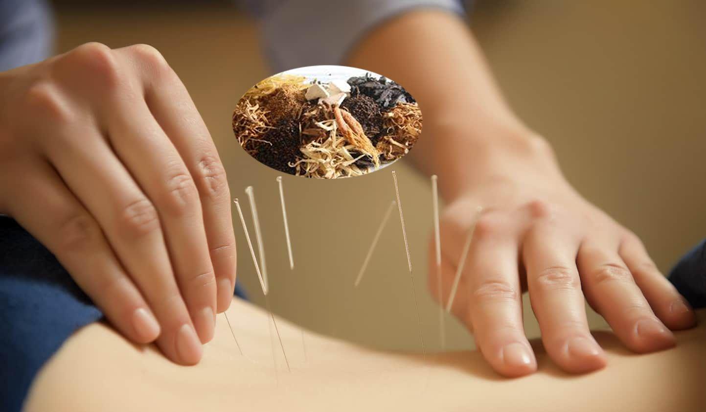 Sử dụng Đông y, vật lý trị liệu trong việc điều trị đau cột sống lưng