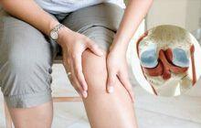 Viêm khớp gối gây ra những cơn đau liên tục, kéo dài