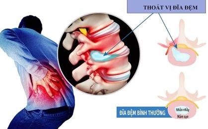 Thoát vị đĩa đệm cột sống lưng – Nguyên nhân, triệu chứng và cách điều trị