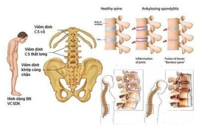 Viêm cột sống dính khớp: nguyên nhân, triệu chứng và cách điều trị