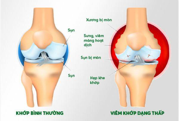 thuoc-chua-viem-khop-dang-thap