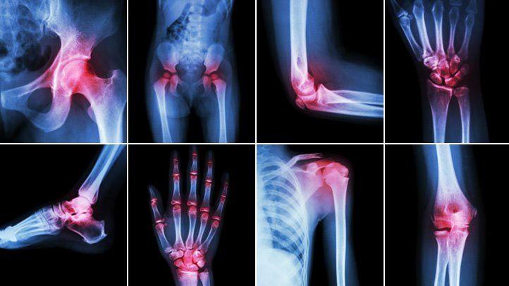 Thuốc giảm đau kháng viêm thường được dùng trong các trường hợp viêm khớp, thoái hóa khớp,...