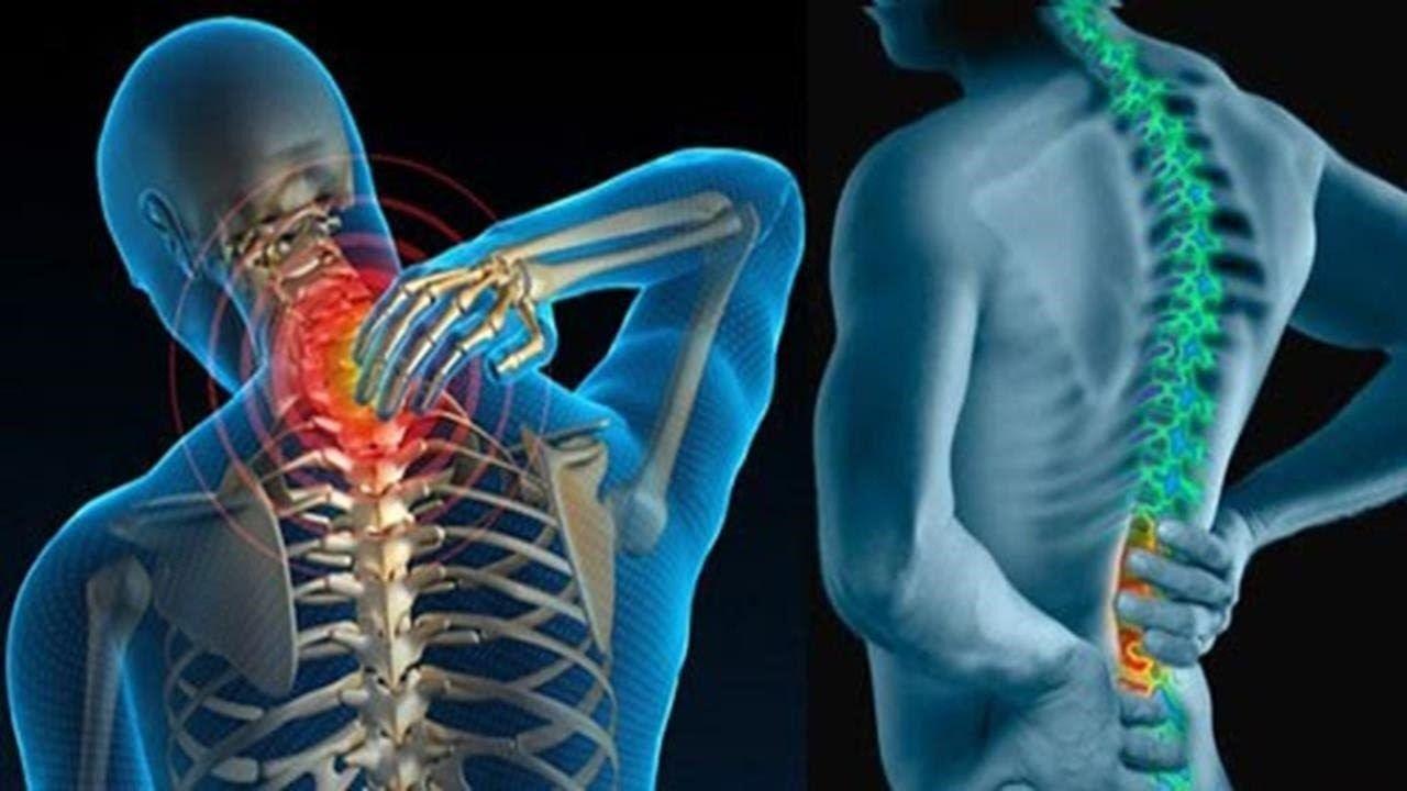 Bệnh gai cột sống là do có gai xương mọc chìa ra bên ngoài gây đau nhức
