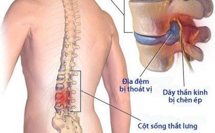 Bệnh gai cột sống thắt lưng – Những điều cần biết