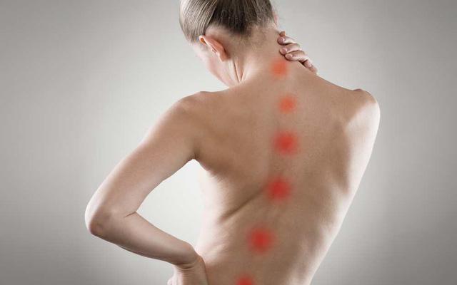 Vẹo cột sống là một trong những triệu chứng của bệnh gai đôi cột sống bẩm sinh