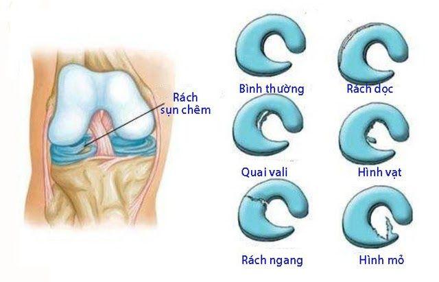 Rách sụn chêm khớp gối là tình trạng chấn thương phổ biến
