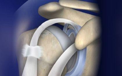 Rách sụn viền khớp vai – Nguyên nhân và cách điều trị