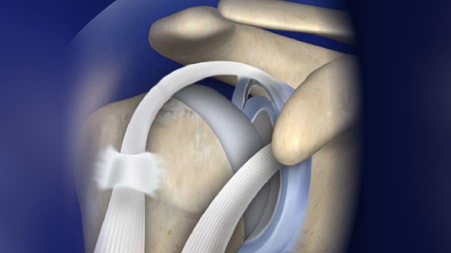 Khớp vai đóng vai trò quan trọng trong việc hỗ trợ khả năng vận động của cơ thể