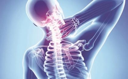 Thoái hóa đốt sống cổ gây đau nhức vùng gáy và đầu