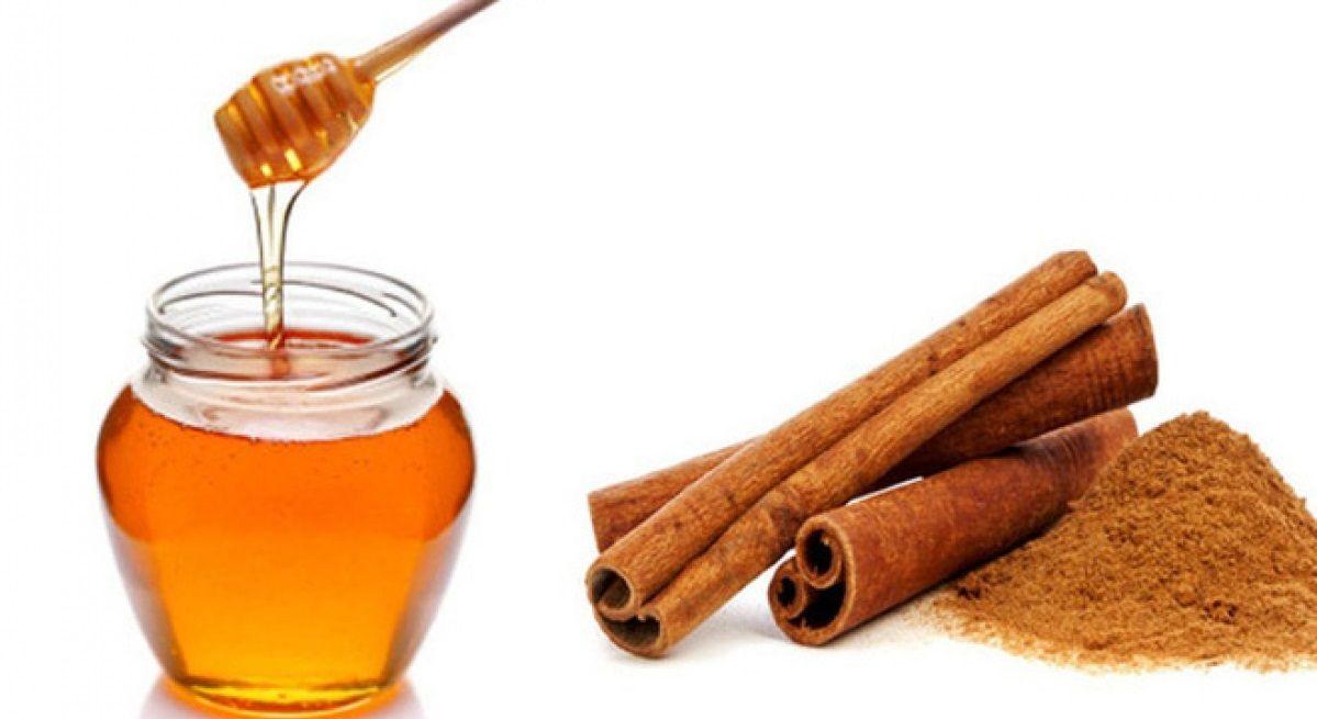 Mật ong và bột quế tốt cho người bị thoái hóa đốt sống cổ