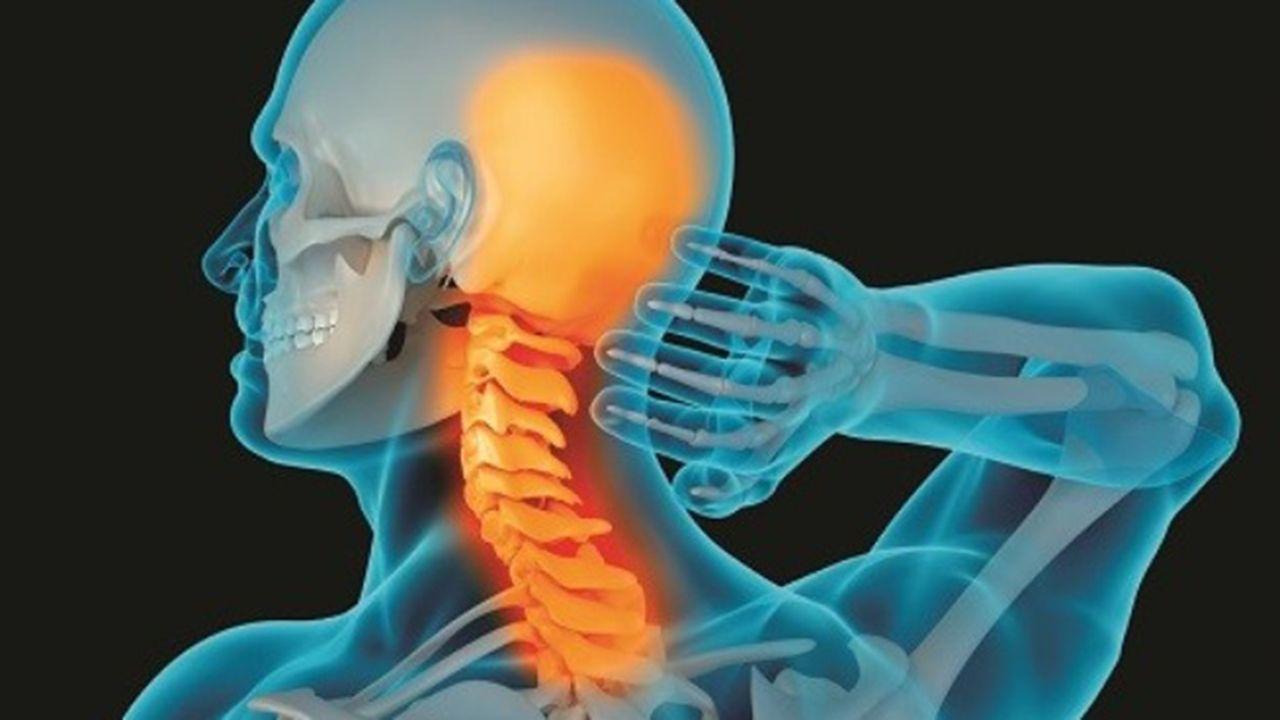 Thoái hóa đốt sống cổ là bệnh lý về xương khớp thường gặp