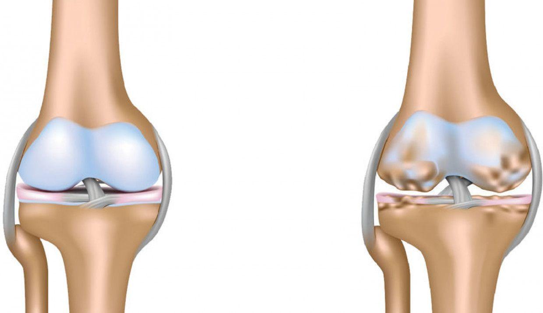 Thoái hóa khớp hay sụn có biểu hiện lâm sàng bởi đau các khớp