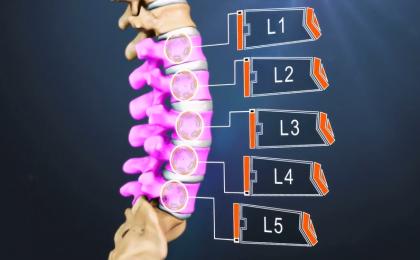 Triệu chứng lâm sàng đau thắt lưng