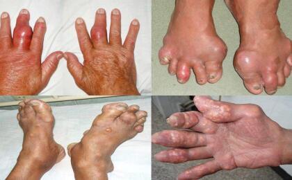 Những triệu chứng của bệnh gout