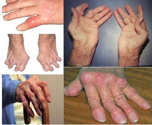 Viêm đa khớp thường xảy ra ở khớp cổ tay, khớp cột sống, khớp vai, khớp gối,...