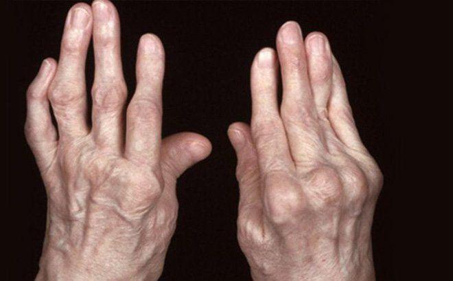 Triệu chứng của viêm khớp dạng thấp là gì? Biểu hiện rõ nét là sự biến dạng các khớp, khớp sưng và đau kéo dài